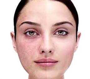 Comment traiter la couperose les rosacées naturellement avec des huiles essentielles bio Astuce naturelle de grand mère, remède contre la couperose, rougeur sur le visage et joues.
