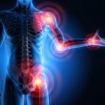 Calmer et soigner une arthrose [Huiles Essentielles]