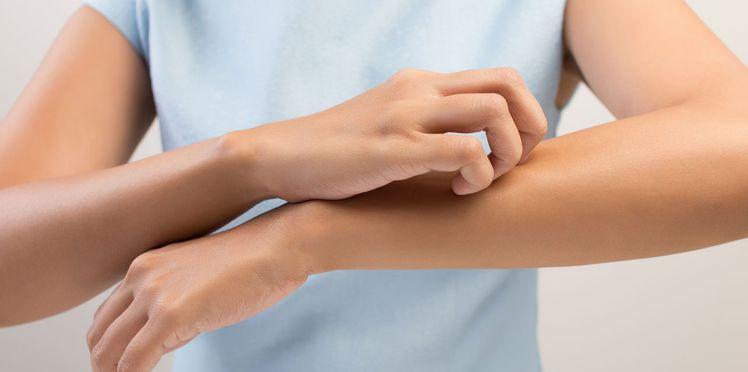 demangeaison peau qui gratte comment traiter pour que ca ne gratte plus demangeaison peau astuces grand mere naturelle rapide huiles essentielles bio naturelle