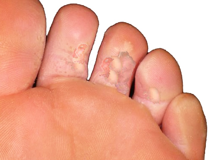 soigner mycose pied