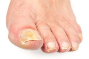 traitement pour une mycose des pieds pieds d'athlète qui gratte traitement naturel astuce de grand mère huiles essentielles bio sans médicament